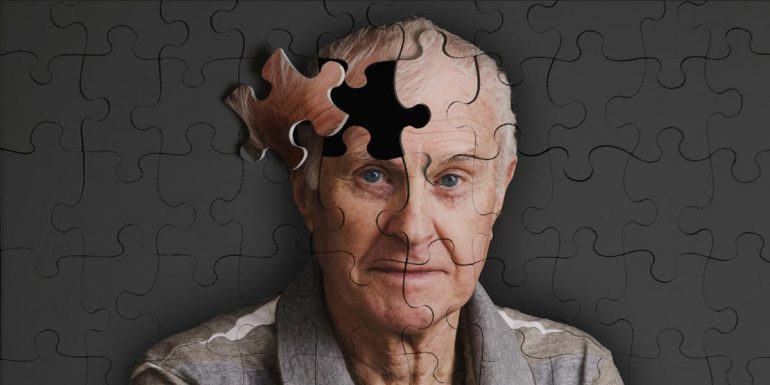 CBD Oil For Dementia In Adults